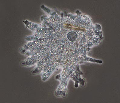 pictire of amoeba